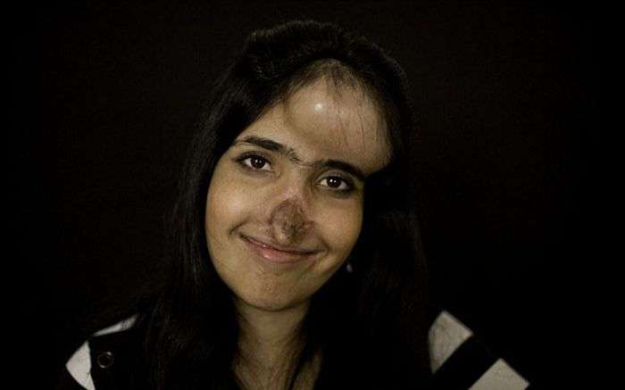 Аїша Мухаммадзаи з новим обличчям (10 фото)