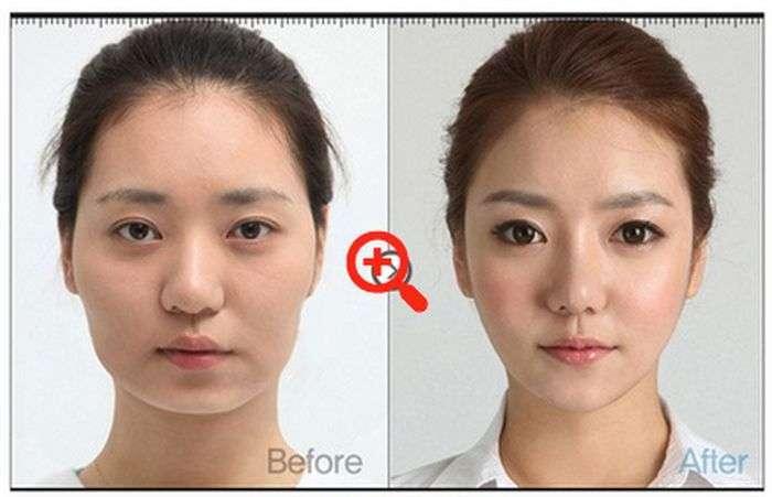 Пластична хірургія в стилі до і після (31 фото)