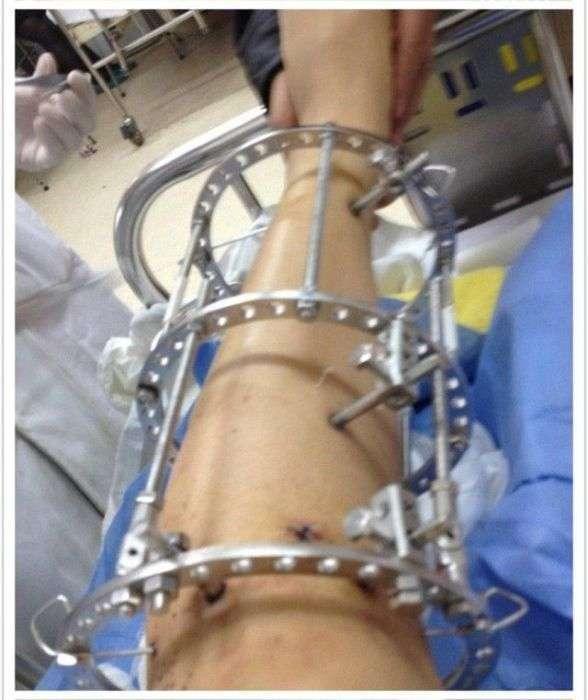 Нарощування кісток для низькорослих людей (8 фото)