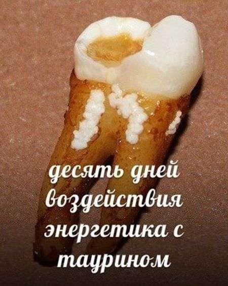 ТОП-10 напоїв, які руйнують наші зуби (10 фото)